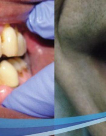 دكتور مروان شامة طبيب اسنان فى السعودية 10