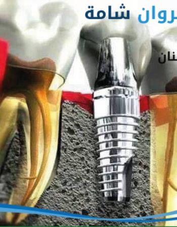 دكتور مروان شامة طبيب اسنان فى السعودية 13