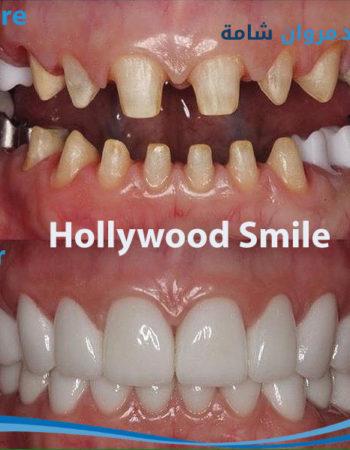 دكتور مروان شامة طبيب اسنان فى السعودية 16