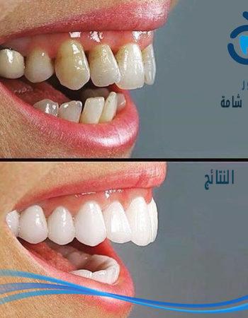 دكتور مروان شامة طبيب اسنان فى السعودية 19