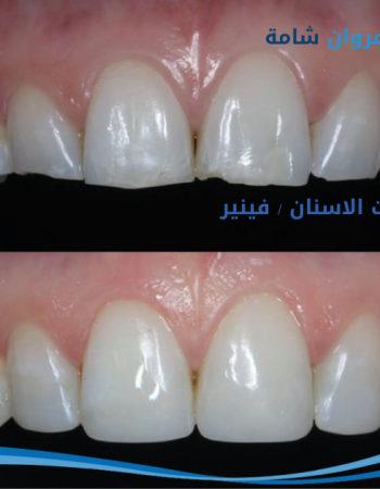 دكتور مروان شامة طبيب اسنان فى السعودية 20
