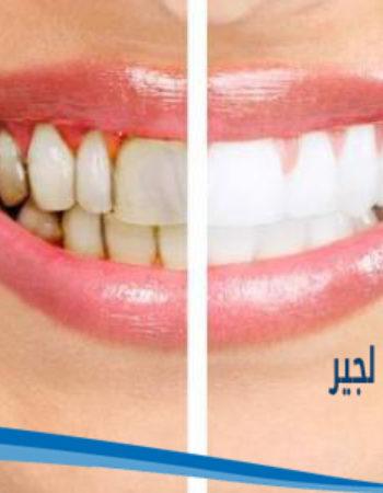 دكتور مروان شامة طبيب اسنان فى السعودية 21