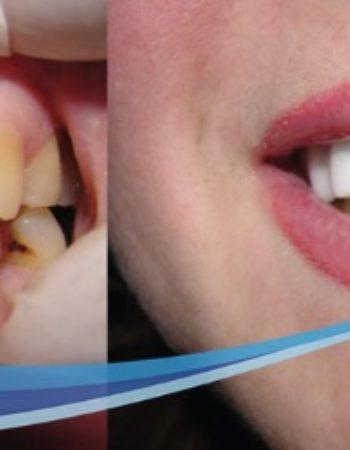 دكتور مروان شامة طبيب اسنان فى السعودية 9