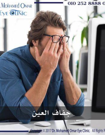دكتور محمد عمر يوسف طبيب عيون فى مدينة نصر القاهرة مصر جفاف العيون