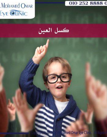 دكتور محمد عمر يوسف طبيب عيون فى مدينة نصر القاهرة مصر علاج كسل العين