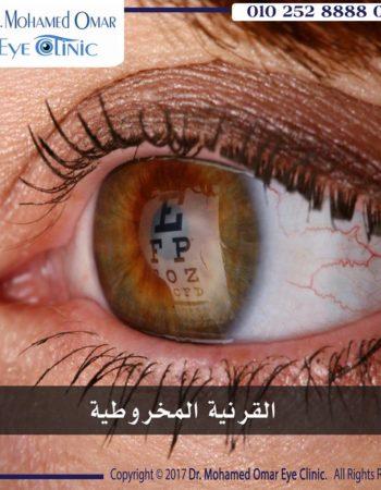 دكتور محمد عمر يوسف طبيب عيون فى مدينة نصر القاهرة مصر 2