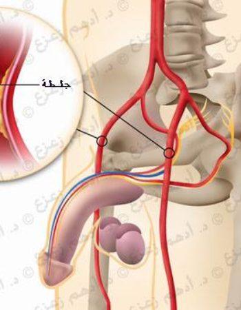 دكتور أمراض ذكورة - د.أدهم زعزع استشاري طب وجراحة أمراض الذكورة Dr Adham Zazou Andrology Doctor in Giza cairo egypt 12