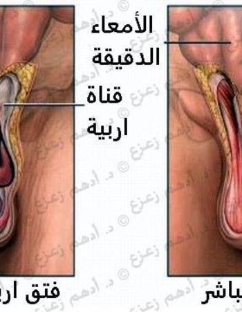 دكتور أمراض ذكورة - د.أدهم زعزع استشاري طب وجراحة أمراض الذكورة Dr Adham Zazou Andrology Doctor in Giza cairo egypt 7