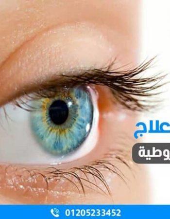 عيادة دكتور عمرو سعيد للقرنية وتصحيح الابصار فى الاسكندرية 5